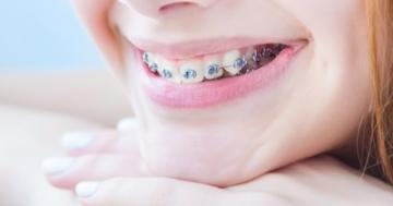 Zahnspangen bei Kindern