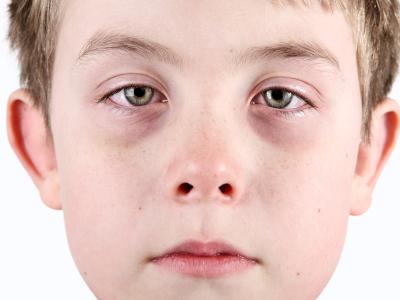 Augenringe Bei Kindern Wann Sind Sie Bedenklich